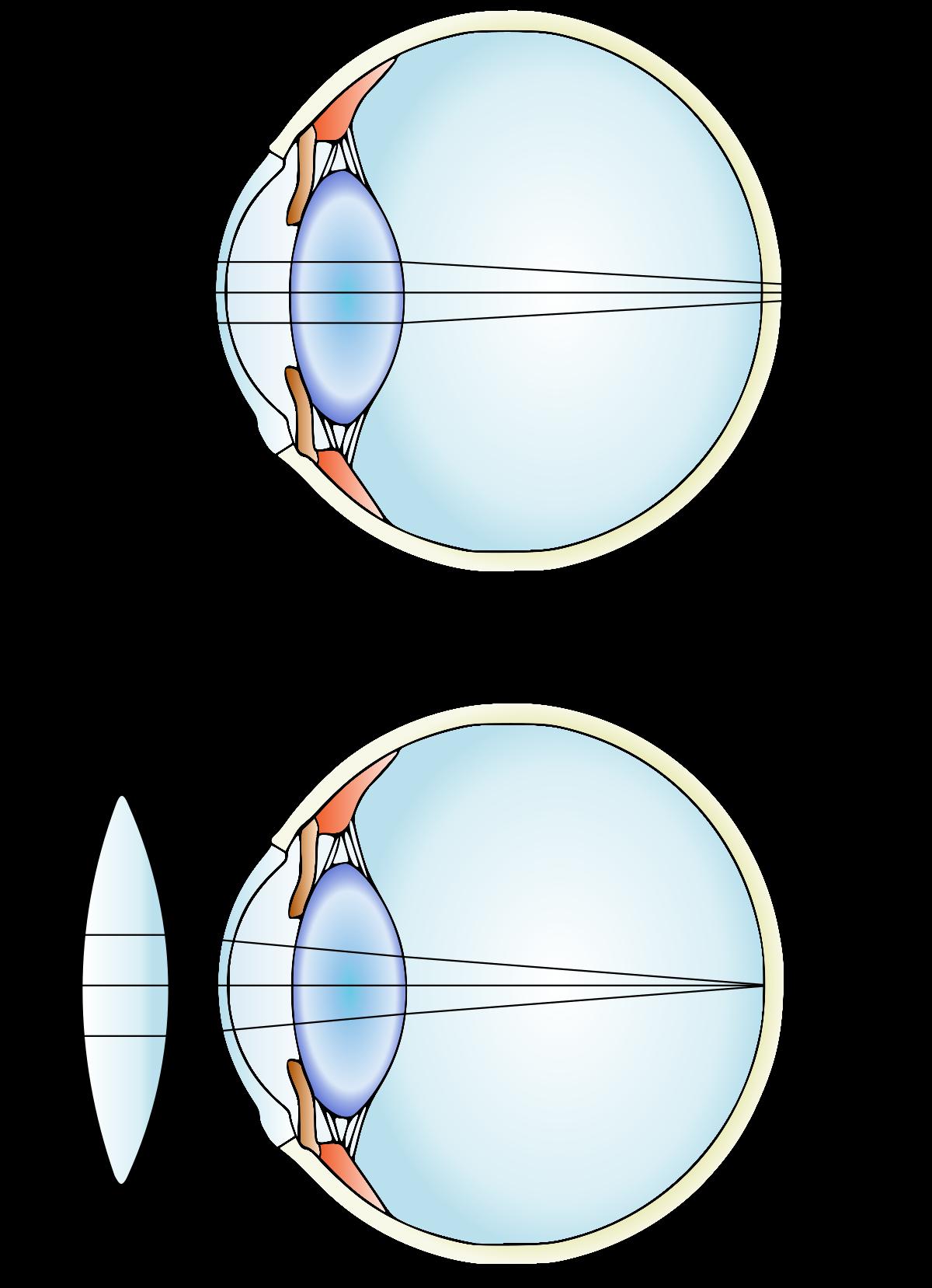 myopia hyperopia diagram gyógyítók a látás kezelésében