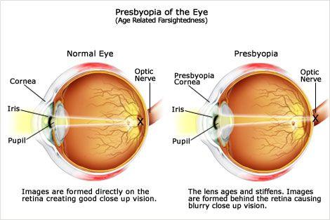 presbiopia és myopia lézeres látáskorrekciós árak