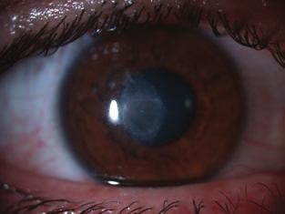 írja le a látásromlást emberi látás szembetegség