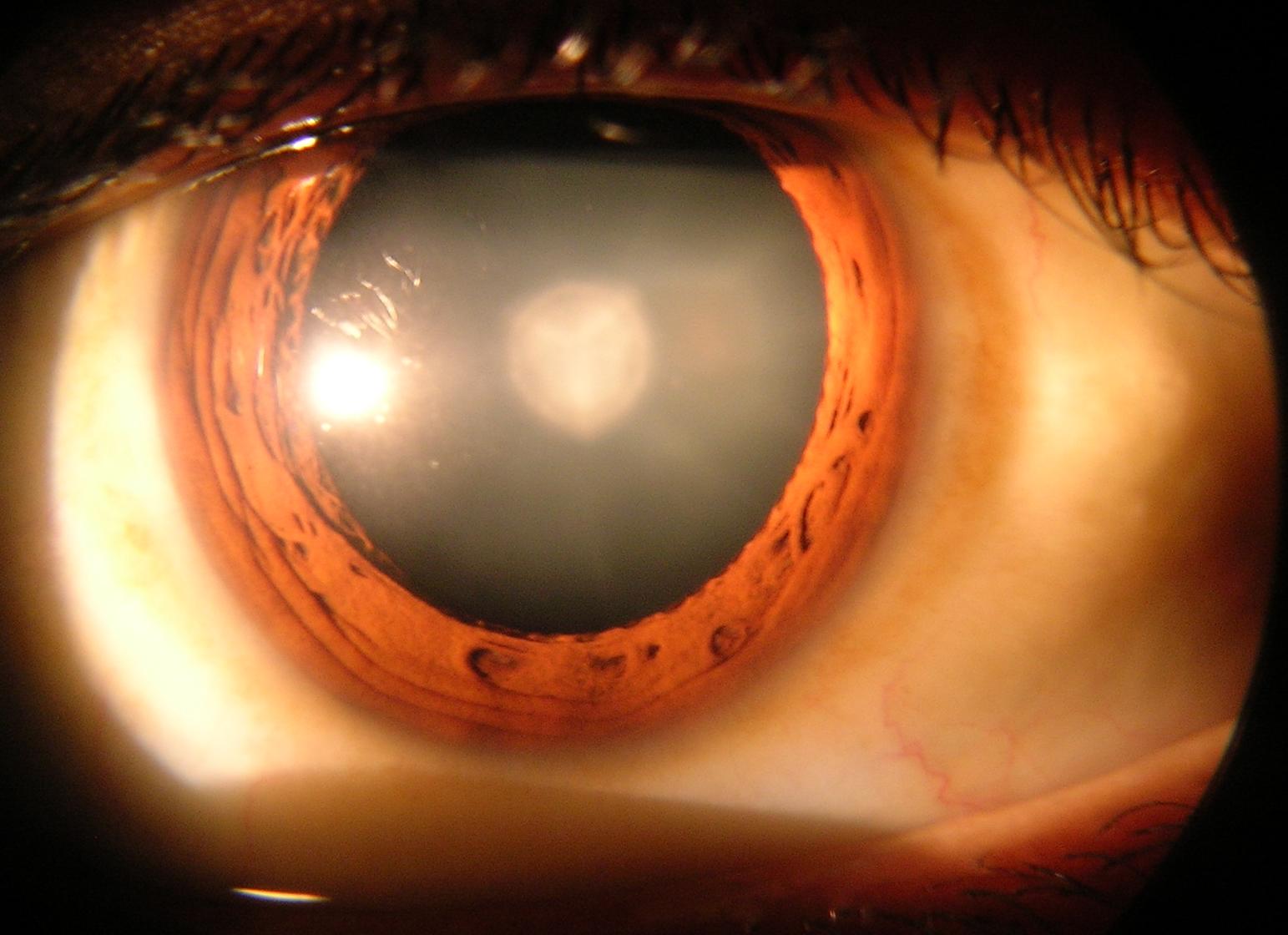 rúna látásjavulás