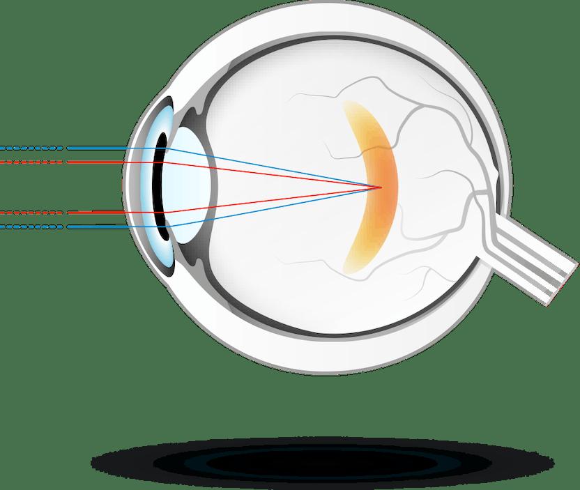 A látás javulása keratitisszel A látást befolyásoló termékek