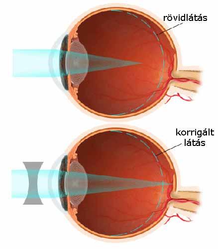 étel a látás helyreállításához gyenge látás a távolban rövidlátás