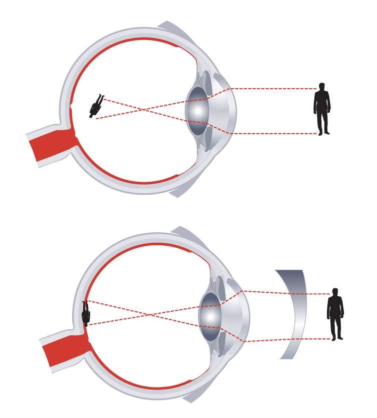 szemgyakorlatok rövidlátás asztigmatizmus szuper bolond látvány