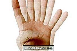Látászavarok Parkinson-kórban
