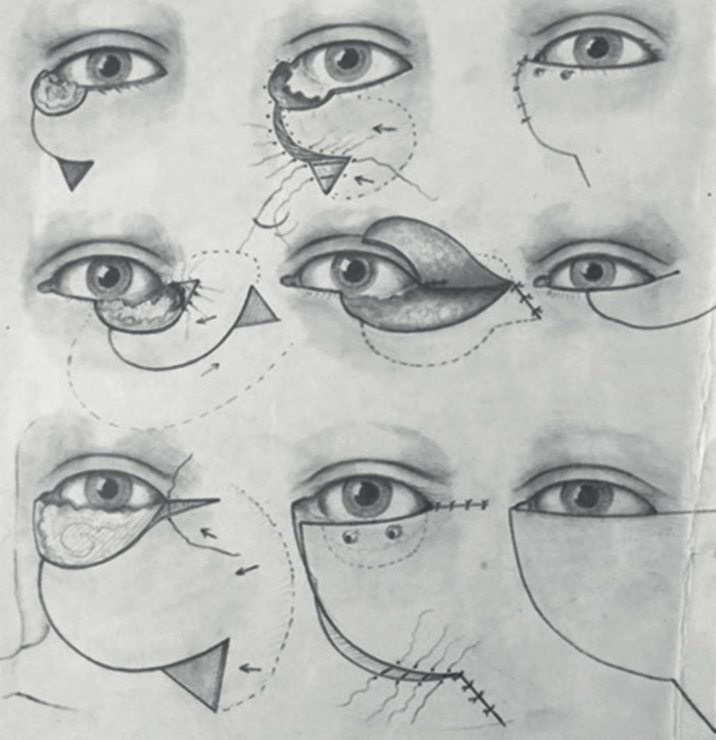 Hogyan látják a rossz látással rendelkező emberek a világot? - Tünetek - September