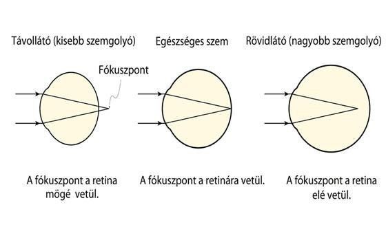 mi az ideiglenes rövidlátás egyik szem másik látás 0 8