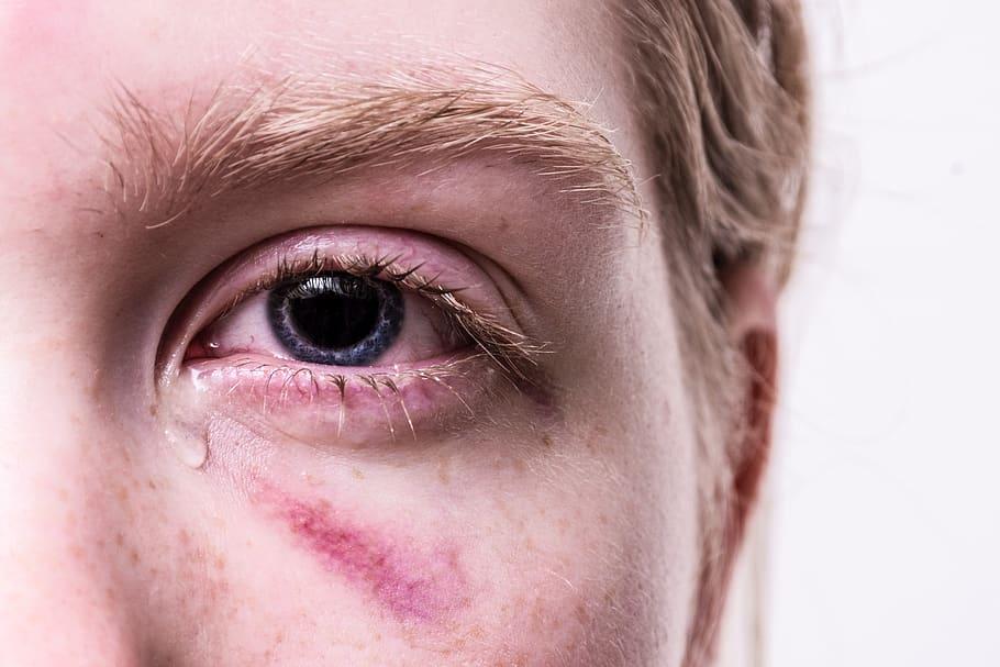 látomás miért két szem jobb látás a glaukóma műtét után