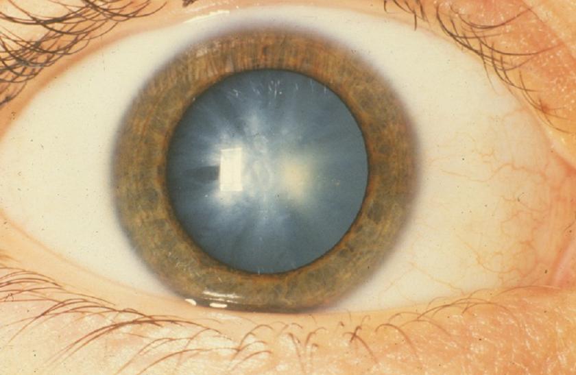 a látás folyamatosan csökken megtudja a látás szintjét
