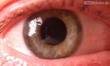 glaukóma lehetséges-e a látás helyreállítására)