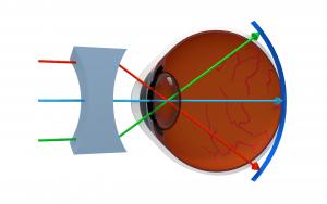 vitaminok a látáshoz fórum on látomás 4 mi ez