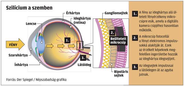 Bates látás asztigmatizmus Látás lásd 3 sort