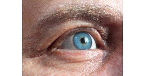 szemizom edzés a látás javítása érdekében