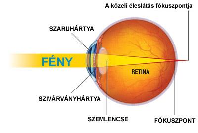 a látás elvész a fejfájástól nagyon rossz látás az egyik szemben