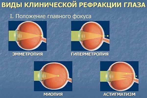 látássérült fizioterápia hyperopia hogyan lehet helyreállítani a látáscseppeket
