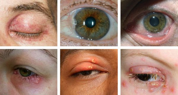 keratitis, amikor a látás helyreáll