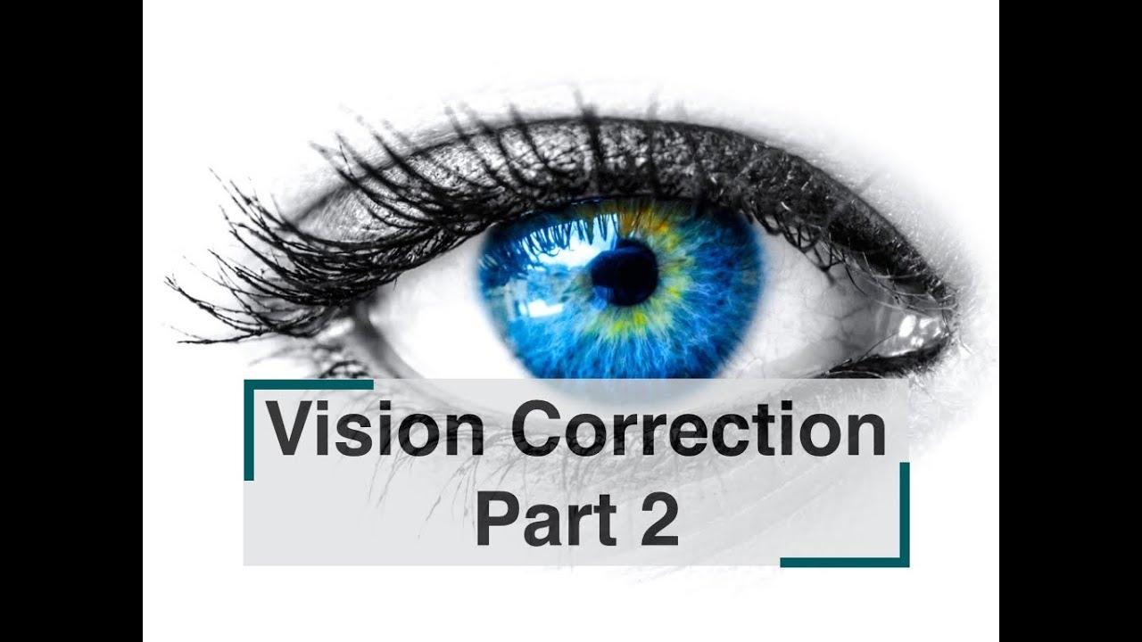 látás rövidlátás 3. fokozat l és plaksin látása