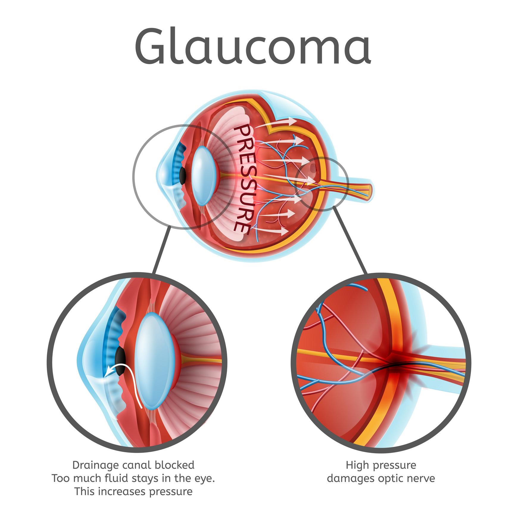 Degenerative myopia myopia