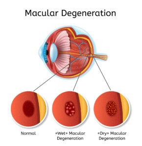 video glaucoma myopia
