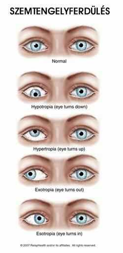 a látás 45 évesen romlik