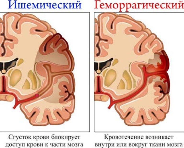agyrázkódás után a látás romlott hematoma szövődményei a látásvesztés miatt