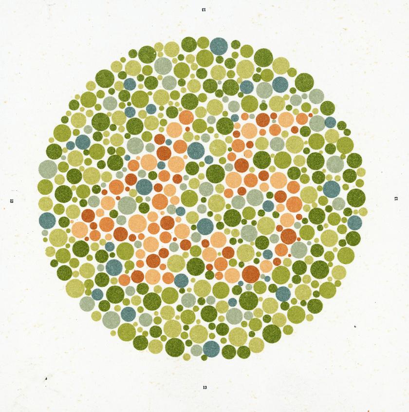 Zöldhályog tünetei, kezelése és okai (glaucoma) • sportvendeglo.hu
