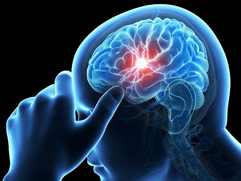 látási probléma agy