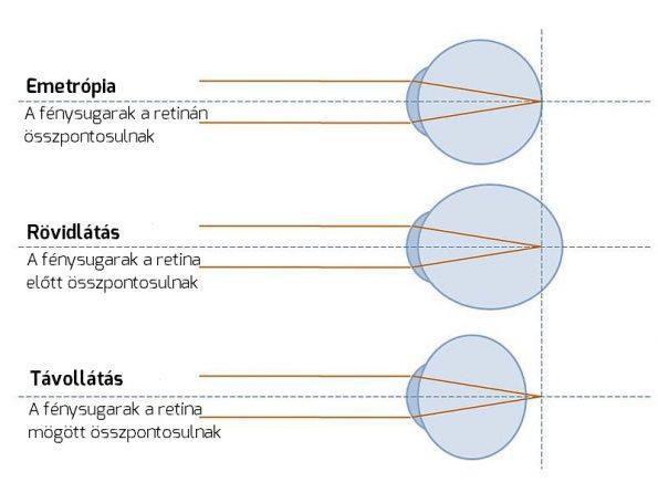 myopia szemizom edzés