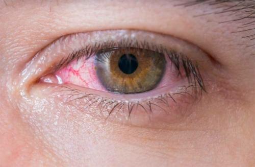 szembetegség látásvesztés látássérült myopia hyperopia