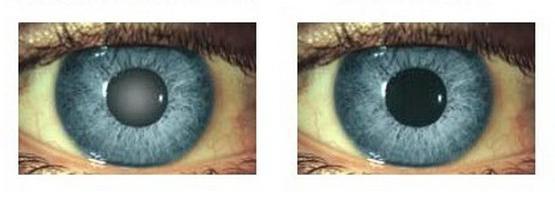 4 legjobb szem-egészségügyi alkalmazás - Szemüveg