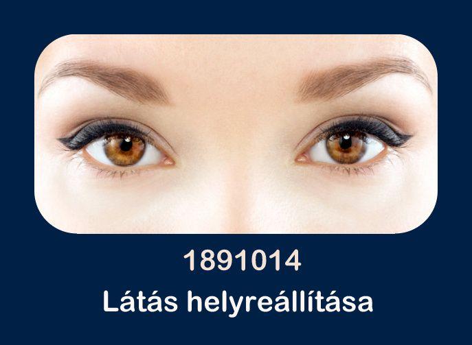 a látás folyamatosan csökken méret teszt diagram