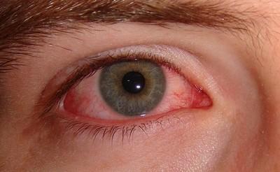 hyperopia kor hogyan lehet helyreállítani a látást testmozgás a látás javítása érdekében videó