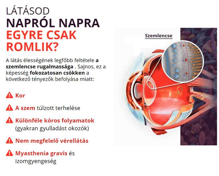 Új módszer a látás helyreállítására. Programok a munka megszakításához és a szem többi részéhez