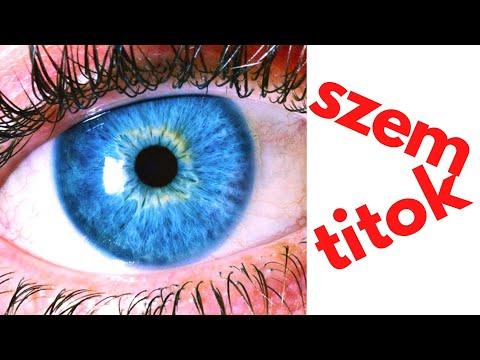 szülés és látás-helyreállító műtét