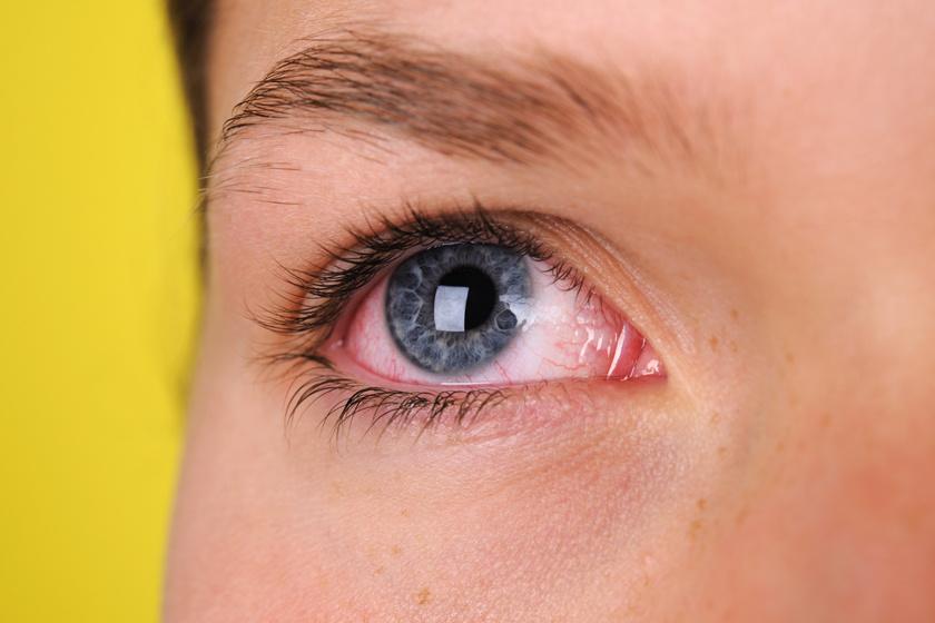 látás időszakosan egy szem