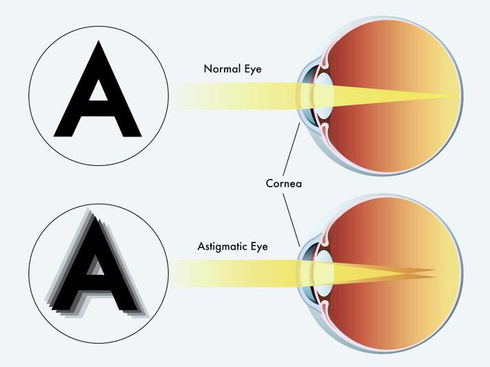 veleszületett és progresszív myopia