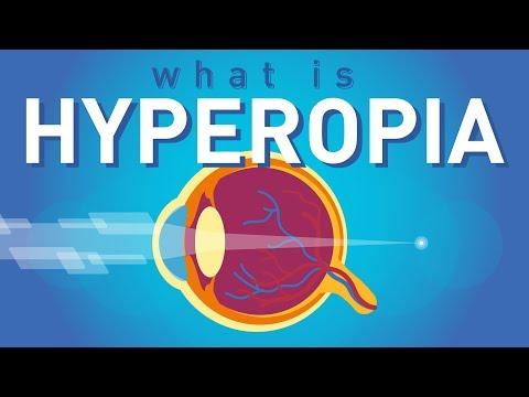 myopia kezelése szemgyakorlatokkal
