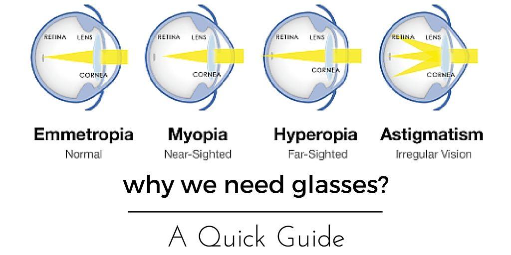 presbyopia hyperopia
