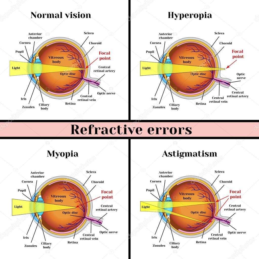 Hypermetrópia - Távollátás - STYLE OPTIKA