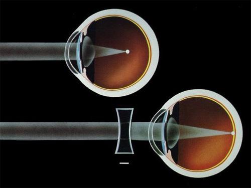 szem elvesztése a bates módszeres gyakorlatok javítják a látást