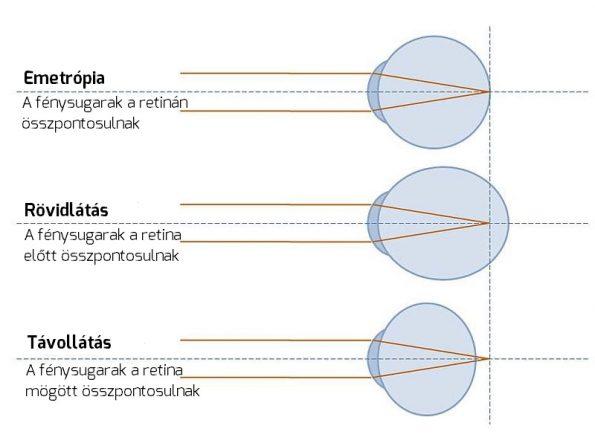 mi okozza a távollátás látását